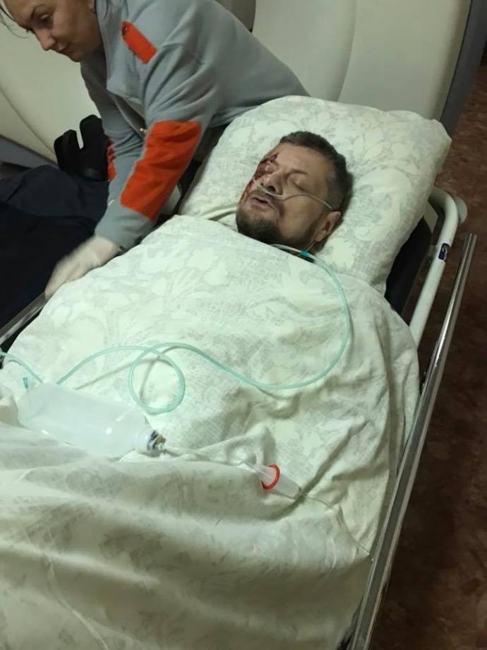 Ляшко назвал причину покушения на Мосийчука (ФОТО)