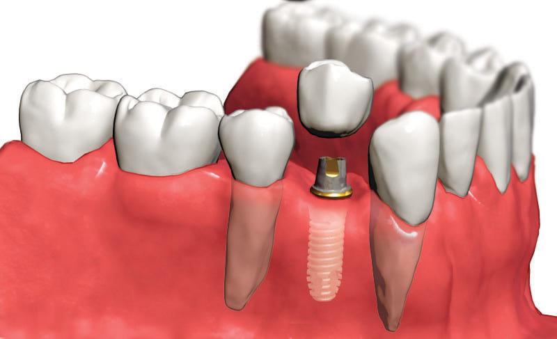 Зубные имплантаты, а также квалифицированная консультация