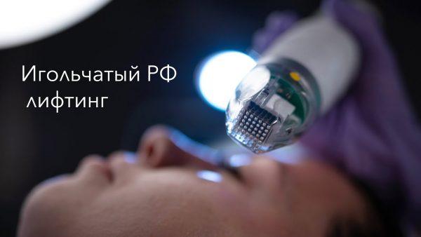 Игольчатый РФ-лифтинг в Киеве