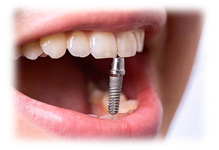 Зубная имплантация: что нужно знать пациенту